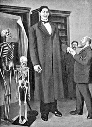 Giant from Russia: Tallest man ever