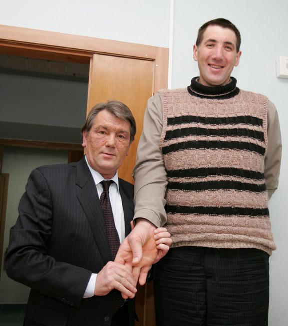 worlds tallest man from Ukraine 6