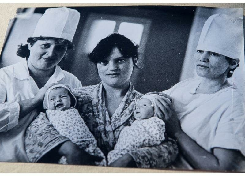 The First Soviet Successfully Separated Siamese Twins