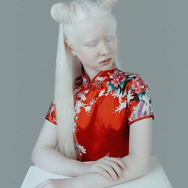 Асель и Камила - сестры-альбиносы из Казахстана, которые покорили модельный мир (10 фото)